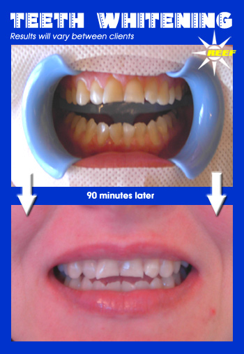 White Spa Teeth Whitening Procedure