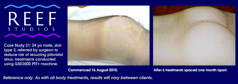 IPL Laser Hair Removal - Bum Case Study