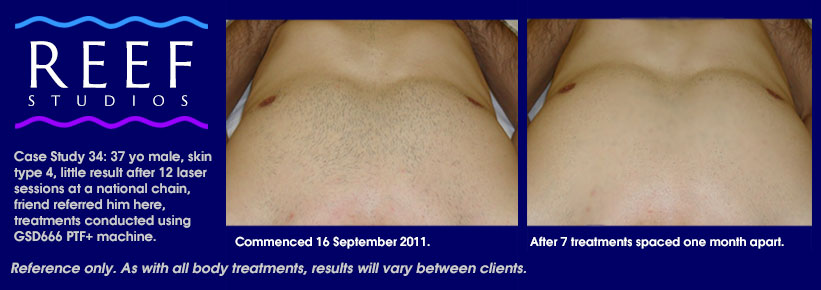 IPL Laser Hair Removal - Chest and Stomach Case Study