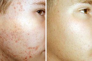 Acne IPL treatment before and after - Rockhampton